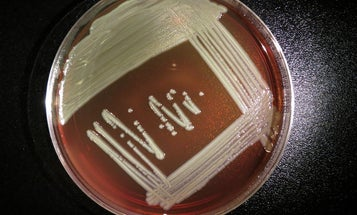 What Is Causing Deadly Bacterial Infections In Wisconsin?
