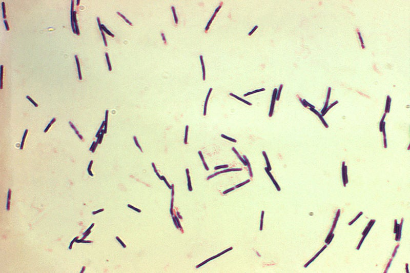 Possible Link Found Between Bacterium And Multiple Sclerosis