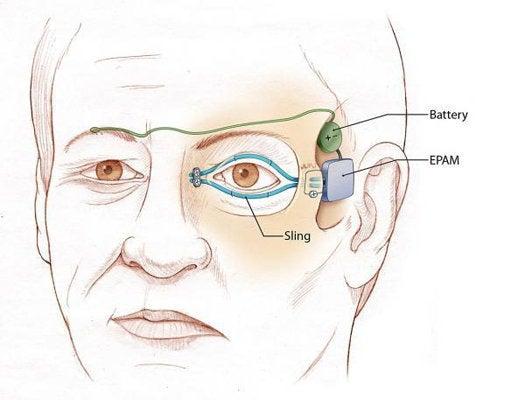 """Eyelid:"