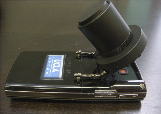 A Software-Powered Cell Phone Microscope That Doesn't Need Special Lenses
