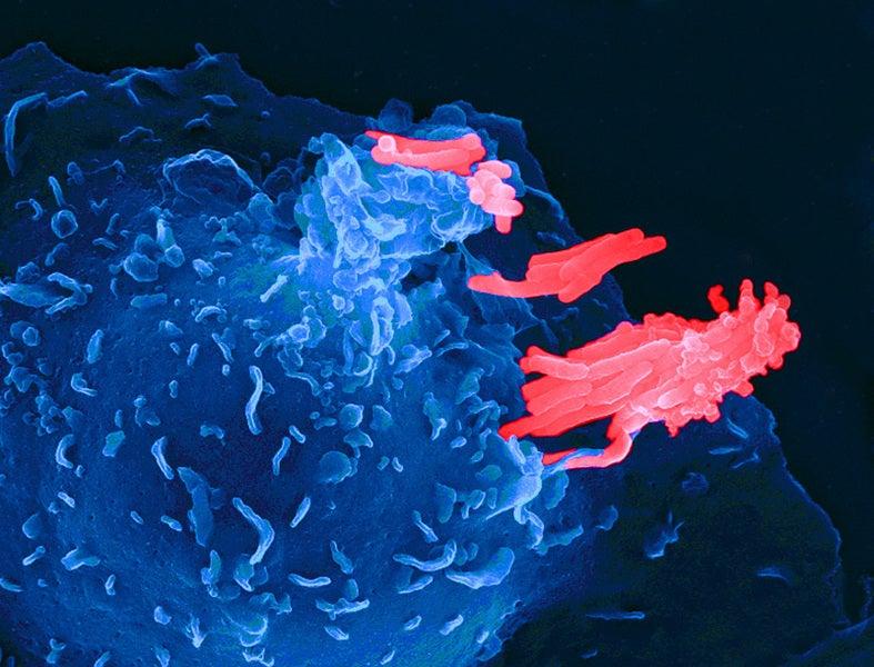 Tuberculosis' Game Of Hide And Tweak