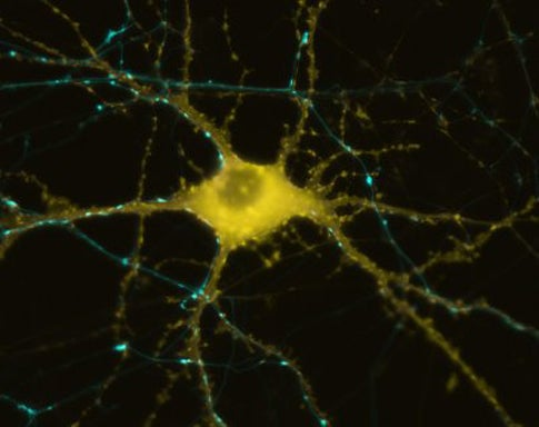 The First Artificial Nerve Cell That Uses Real Neurotransmitters