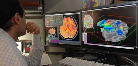 Brain Scans Could Identify Depression Before Symptoms Emerge
