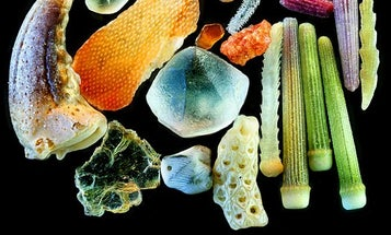The Winners of the 2011 Nikon Small World Photomicrography Competition