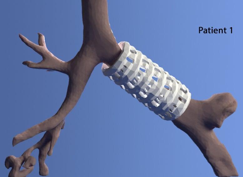 3D-Printed Biomaterial Restores Babies' Breathing