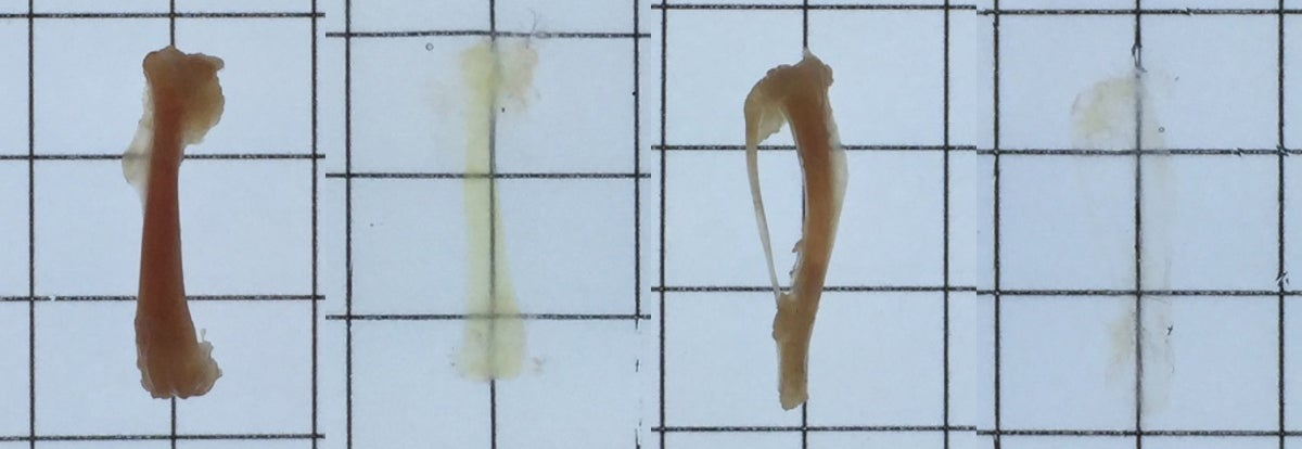 We now have the power to make bones nearly invisible