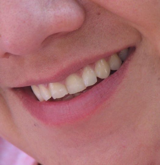 Enzymatic Plaque Inhibitor Could Put an End to Cavities