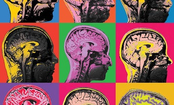 Check out the most astounding neuroscience images of the year
