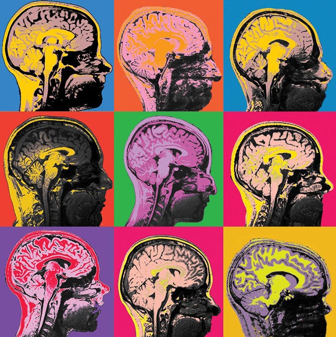 MRI images of the human brain