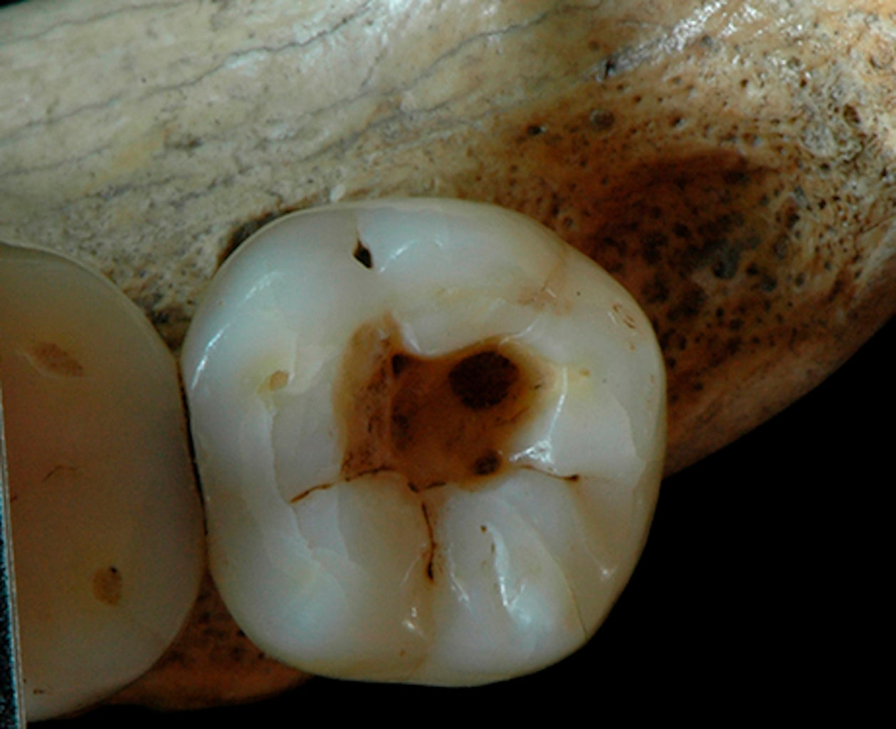 People Were Treating Cavities 14,000 Years Ago–And It Wasn't Pretty