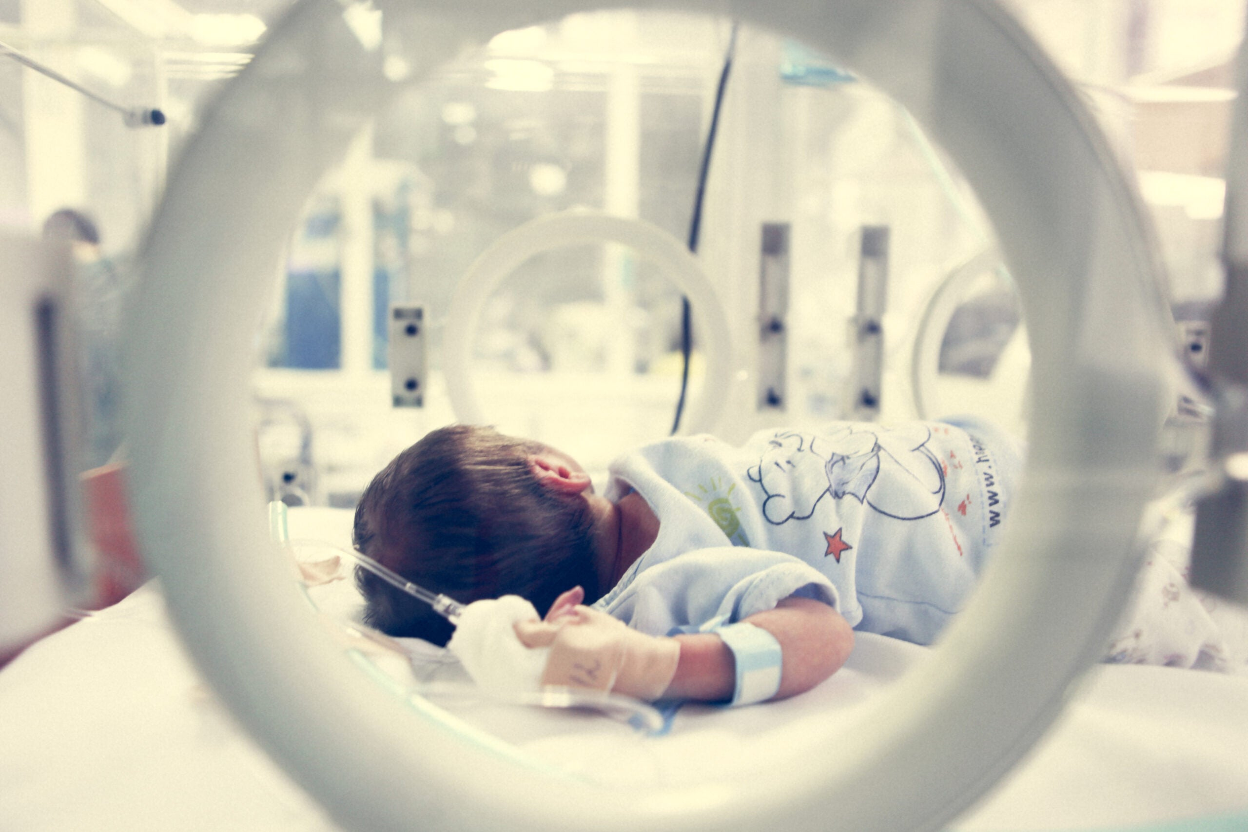Premature babies get worse healthcare if they're not white