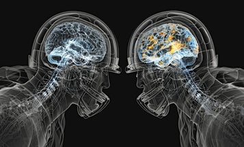 Tackling Brain Trauma Head-On