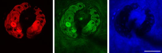 Video: New Microscopy Method Can Shoot Real-Time Footage at the Subcellular Level