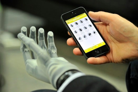 The First App-Controlled Bionic Hand