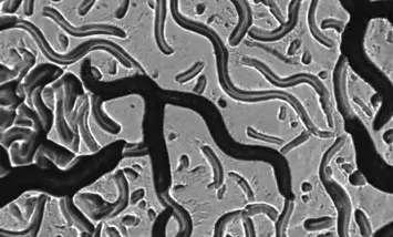 Magnetic Nanoparticles Can Be Used to Charge Neurons And Control Your Behavior, Study Says