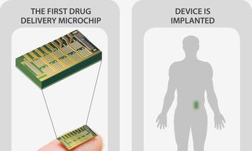 A Remote-Controlled Birth Control Implant