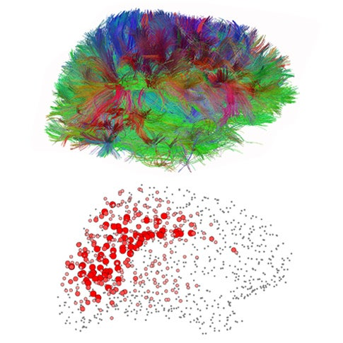 Mapping The Human Mind