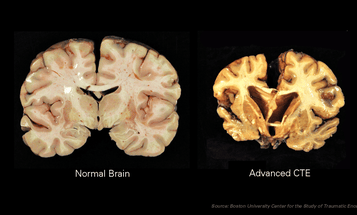 Young Athletes Might Develop Brain Degeneration Like The Pros