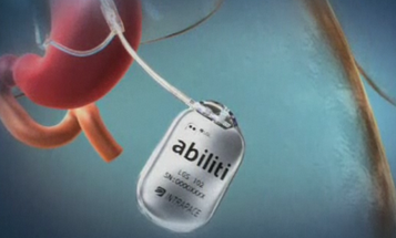 A Pacemaker for Your Gut Feigns Fullness, Tricking You Into Eating Less