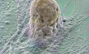 U.S. Researchers Cleared To Work With 13 More Embryonic Stem Cell Lines