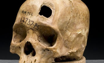 Newly-Found Stem Cells Can Repair Damaged Skulls