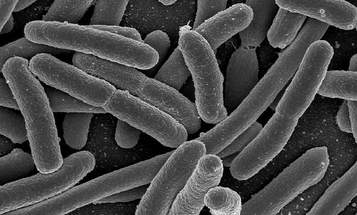 Rugby Player Study Suggests Exercise Diversifies Gut Bacteria