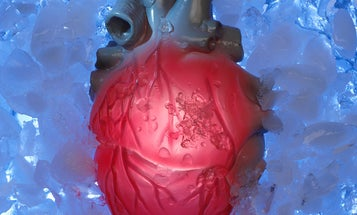 Freezing the heart to save the life