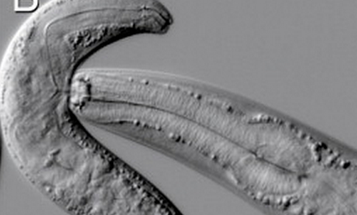 With Identical Neurons, Two Worm Species Live Very Different Lives