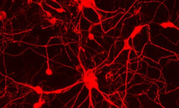 Skin Cells Converted Directly To Brain Cells, For First Time Ever