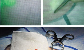Cut-by-Color Surgery