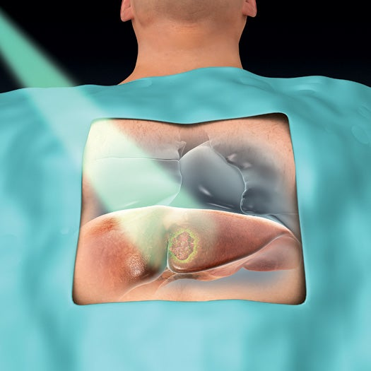 Fluorescent Imaging Helps Surgeons Cut More Cancer Cells