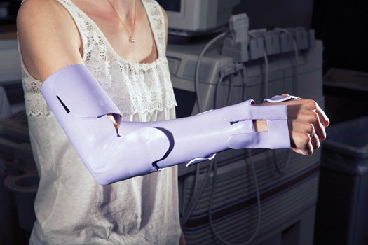 2012 Invention Awards: A Recovery-Accelerating Modular Cast