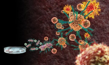 Instant Expert: A Vaccine For Cancer