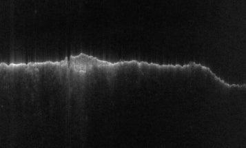 Big Pic: A Radar View Of More Than 3,000 Miles On Mars