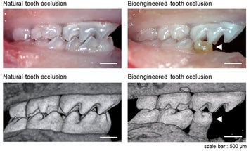 Mice Molars Grown From Stem Cells Form Fully Functional, Transplantable Teeth