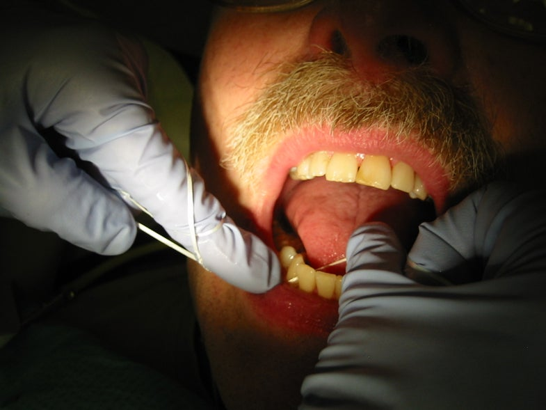 Did Anyone Check To See Whether Flossing Actually Works?