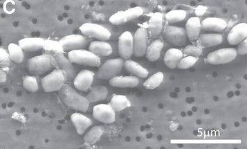 NASA's Arsenic-Loving Bacteria Don't Love Arsenic After All, Critics Say