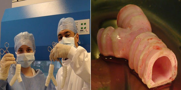 Using a Lab-Grown Trachea, Surgeons Conduct the World's First Synthetic Organ Transplant