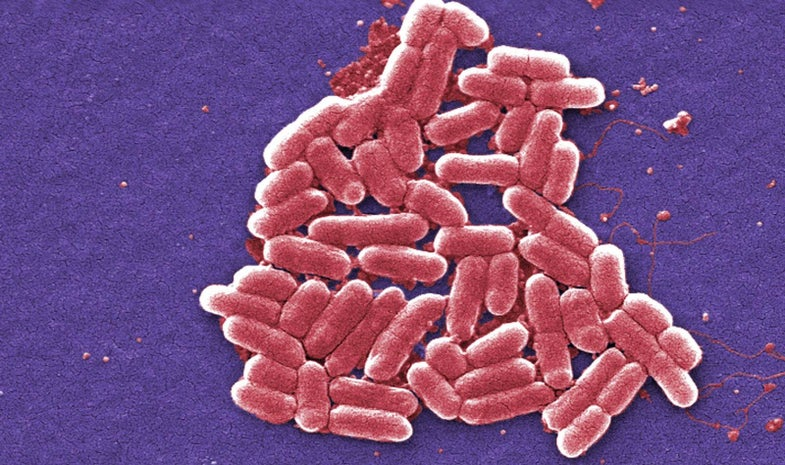 Your DNA Could Make You Resistant To Certain Bacteria