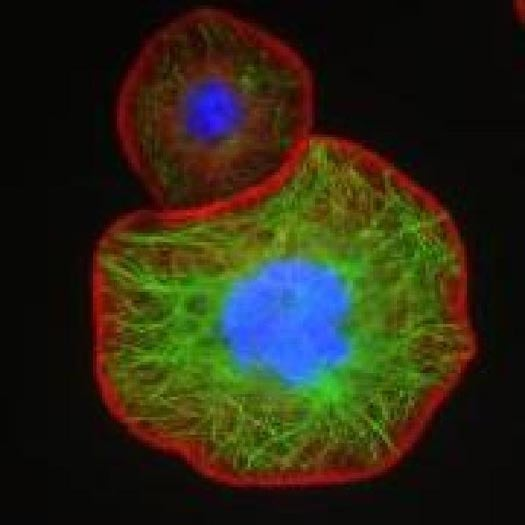 In First Successful Human Trial, Nanotech Robots Deploy Cancer-Fighting RNA