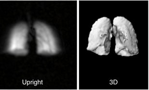 Affordable DIY MRI Shows How We Really Breathe