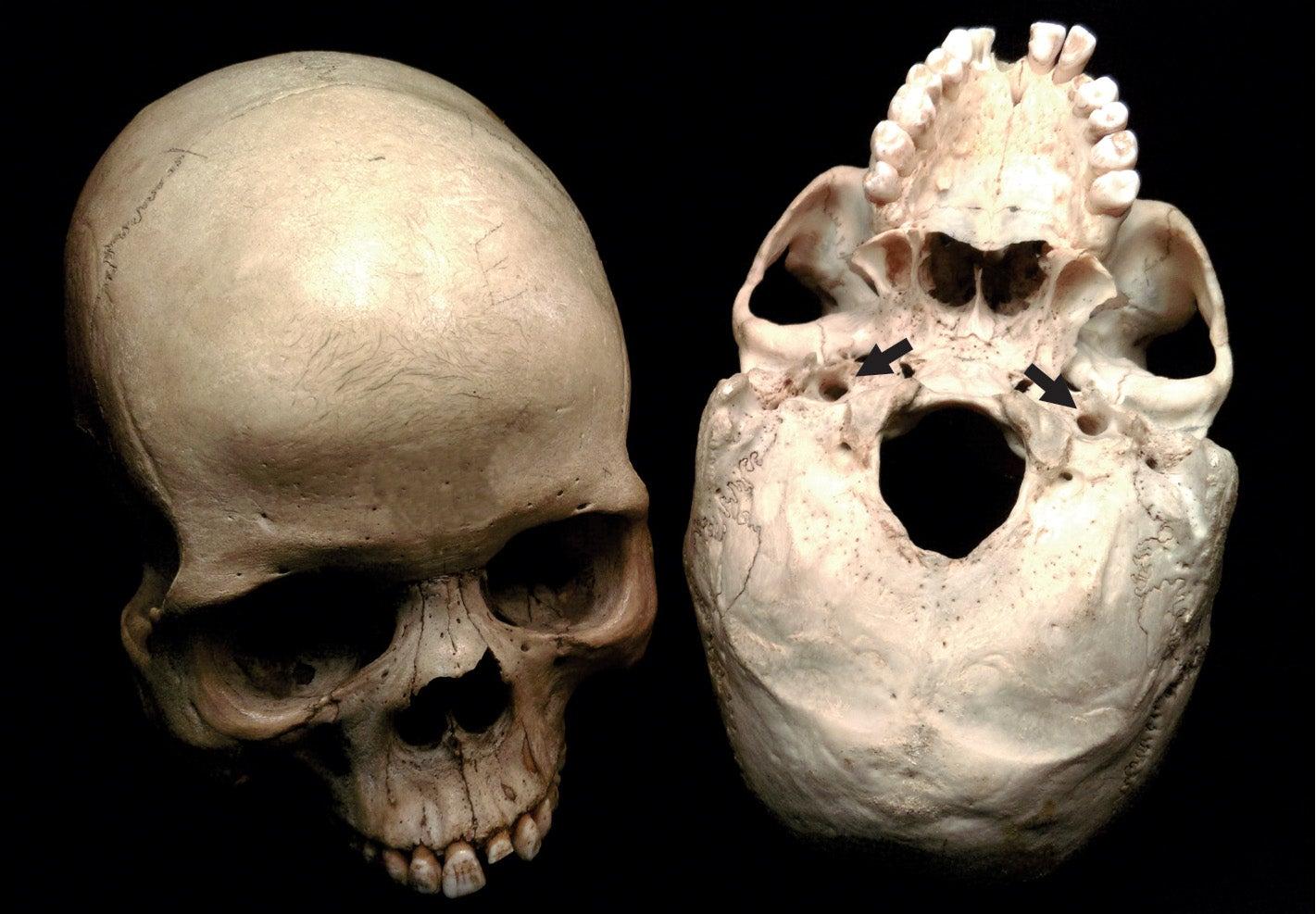 Blood-Guzzling Brain Key To Evolution Of Human Intelligence