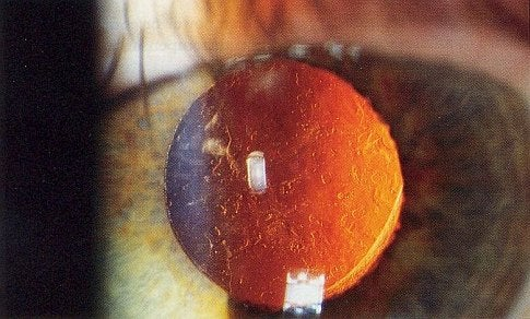 Custom-Tuned Eyesight Is the Latest Trend in Ophthalmology