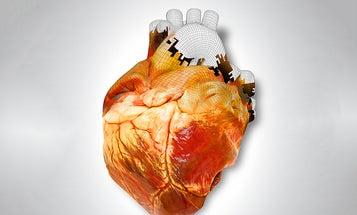 How 3-D Printing Body Parts Will Revolutionize Medicine