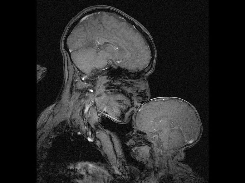 MRI Of Mother And Child