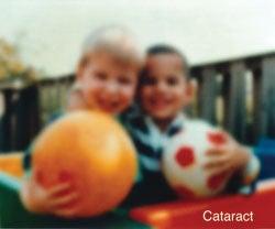 """""""Cataract"""
