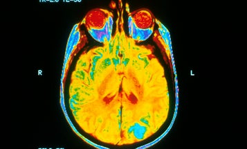 Largest-Ever Medical Imaging Study Launches In The UK