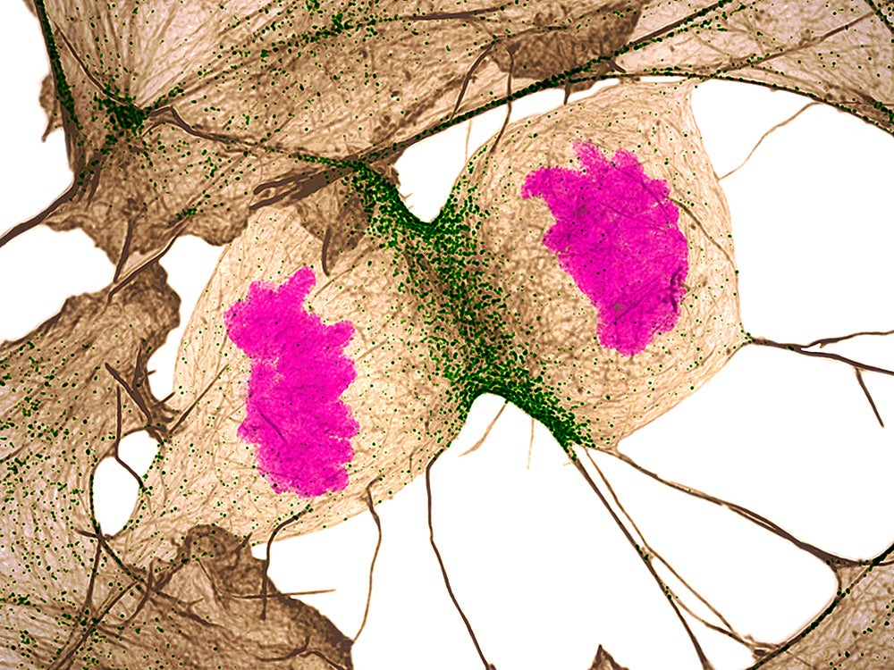 Human fibroblast undergoing cell division
