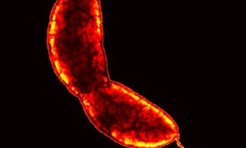 Video Microscopy Unveils the Tricks of Nature's Toughest Glue, Oozed By a Bacterium