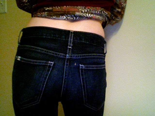 Case Study: Skinny Jeans Cause Nerve And Muscle Damage